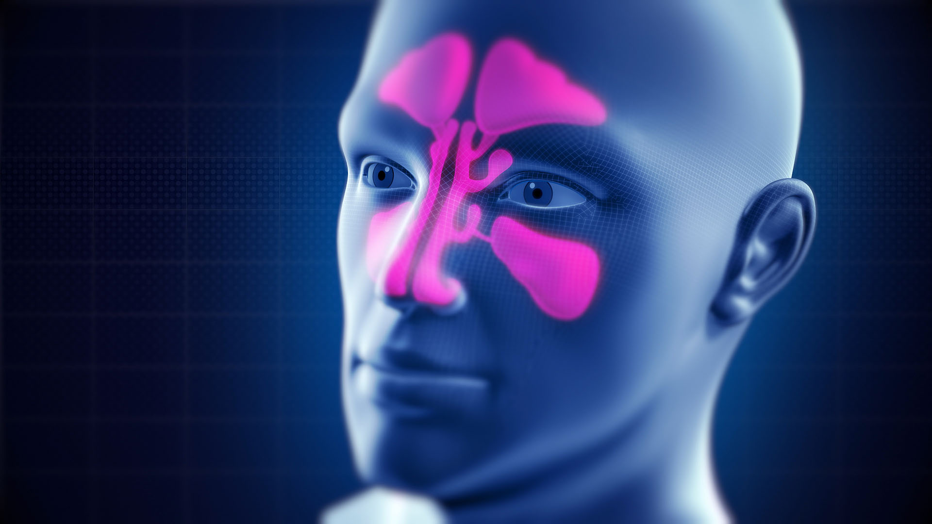 Sinusitis - Symptoms and Infections: A second Opinion