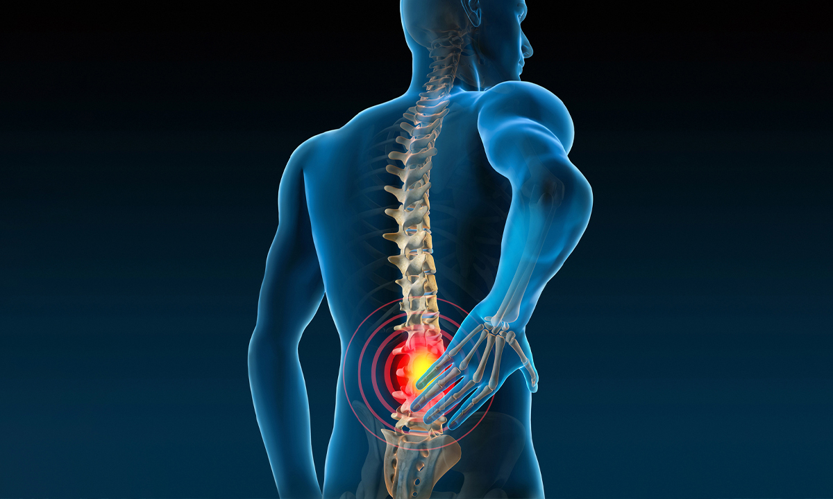 Expert opinion is recommended  in the case of Prolapsed Disc