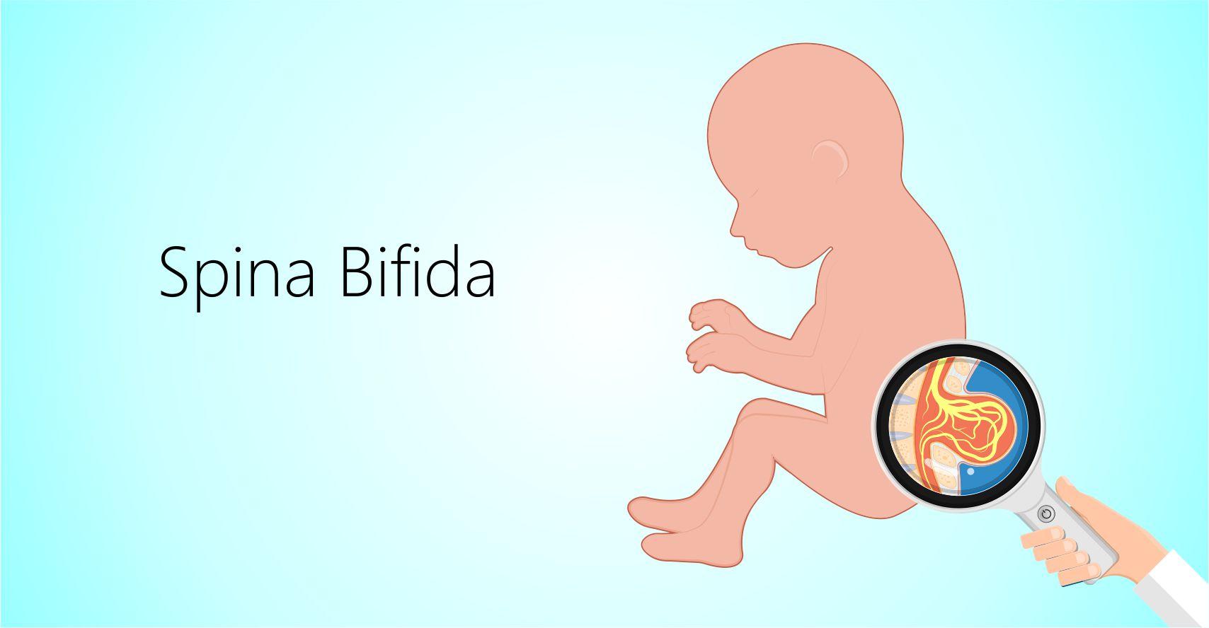 Diagnosis and treatment for Spina Bifida